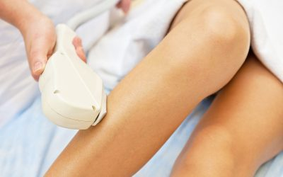 Laser hair Removal: Why it's done and what to expect